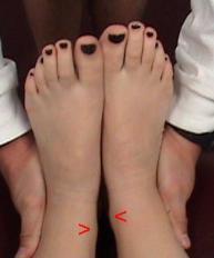 Functional Leg Length Inequality