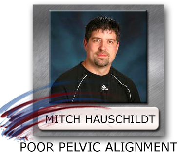 Poor Pelvic Alignment